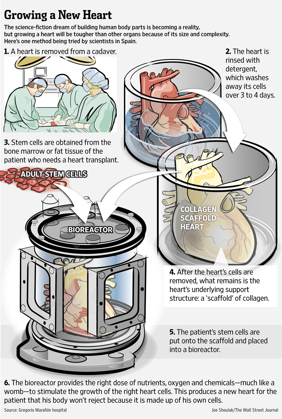 Using stem cells to grow a human heart